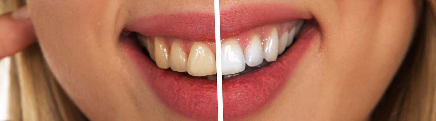 Как избежать образования зубного налета от кофе, чая и сигарет